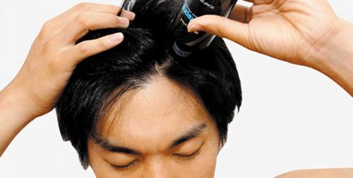 听说90后都开始秃顶了?!日本Aderans爱德兰丝药用头皮护理生发液——脱发人士的曙光Thu Jan 31 2019 12:06:25 GMT+0800 (中国标准时间)